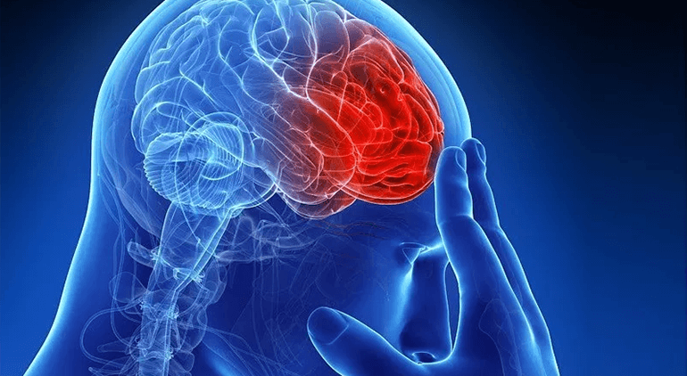 A stroke takes place where the blood supply to the brain stops taking place.